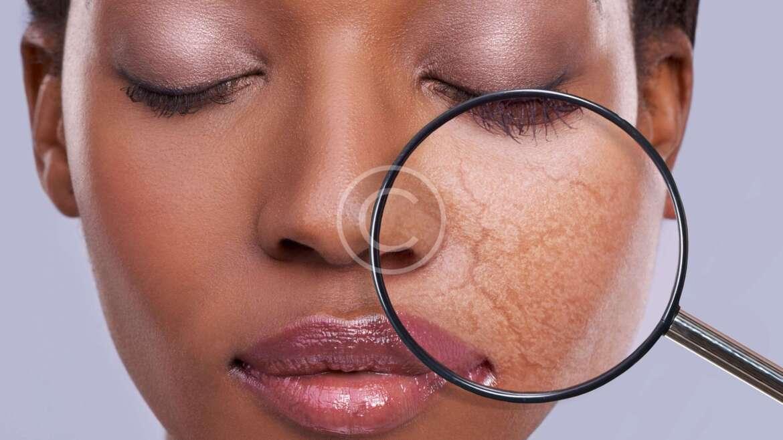 Medical Dermatology